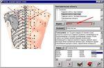 поиск акупунктурных точек по индексу